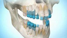 выращивание зубов у человека, когда это станет возможным