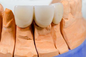пластмассовые коронки на передние зубы: плюсы и минусы, отзывы