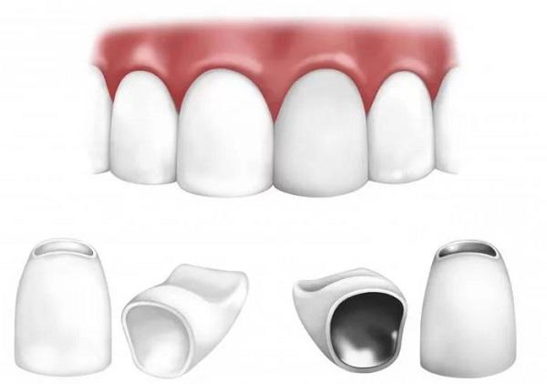 основные этапы установки коронок из металлокерамики