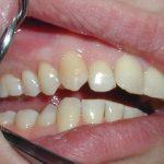 как лечат гранулему зуба в домашних условиях