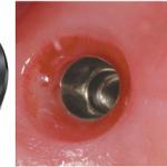 импланты Implantium, их описание и особенности