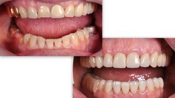 как выглядят металлокерамические коронки на передних зубах, фото