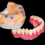 технология изготовления покрывных зубных протезов