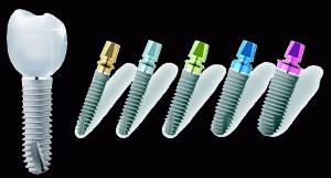 преимущества установки ankylos имплантов