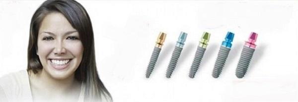 особенности установки имплантов из Германии