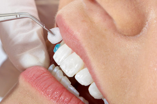 подбор винир для передних зубов