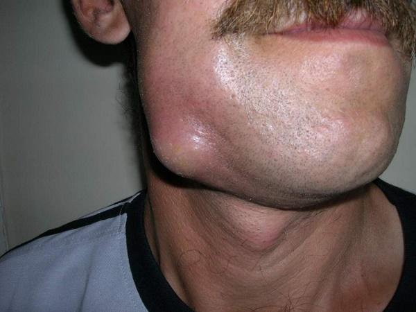 абцесс, гнойно воспалительное заболевание