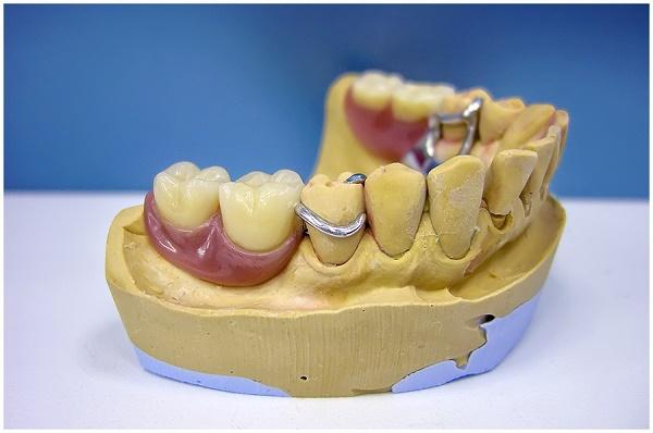 моделировка каркаса бюгельного протеза на нижнюю челюсть