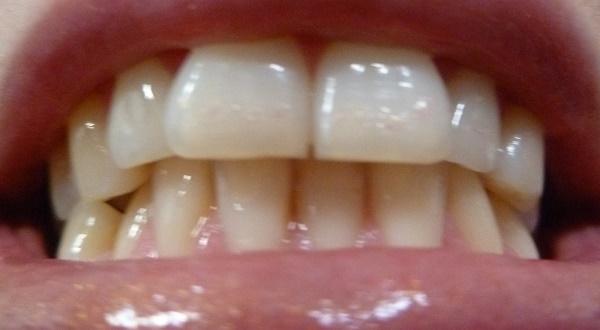болит челюсть при жевании, при жевании болит челюсть возле уха, почему болит челюсть при жевании, болит челюсть с левой стороны при жевании, челюсть болит при открывании рта и жевании, болит челюсть справа при жевании, болит челюсть слева при жевании, болит челюсть при жевании и открытии рта, болит сустав челюсти при жевании, при жевании болит челюсть возле уха справа, болит челюсть возле уха слева при жевании, болит челюсть возле уха при жевании причины, почему щелкает челюсть при жевании и болит