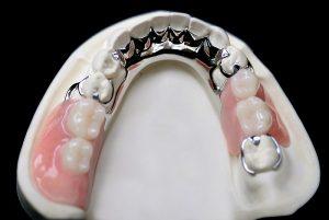 плюсы установки бюгельного протеза на нижнюю челюсть