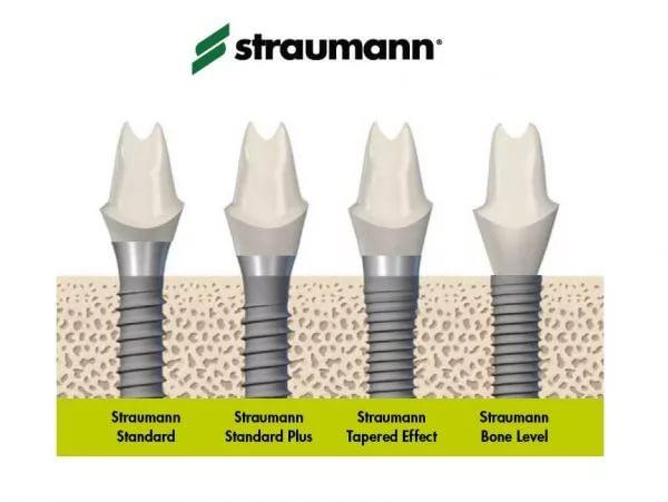 разновидности имплантов Straumann