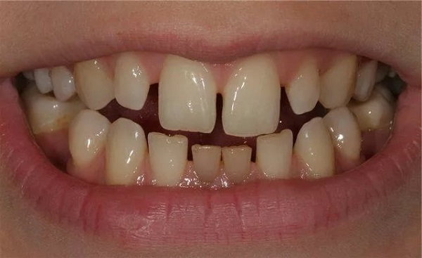 влияние стоматологических проблем на возникновение трем