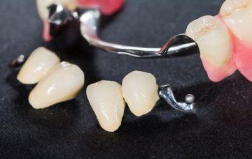фото бюгельного протеза на нижнюю челюсть