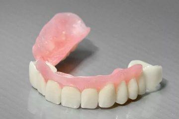 зубной сэндвич-протез, что это и сколько он стоит