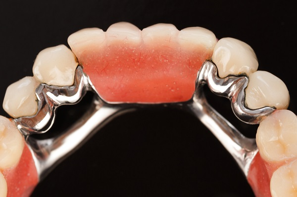 хороший способ восстановления зубного ряда
