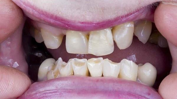 высокая стираемость зубов - показание к установке протезов
