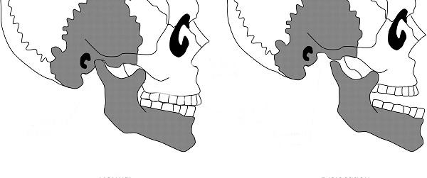 вывих нижней челюсти как причина боли с левой стороны