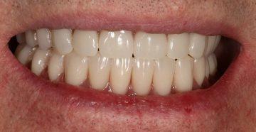 какие бывают осложнения после имплантации зубов, способы их устранения