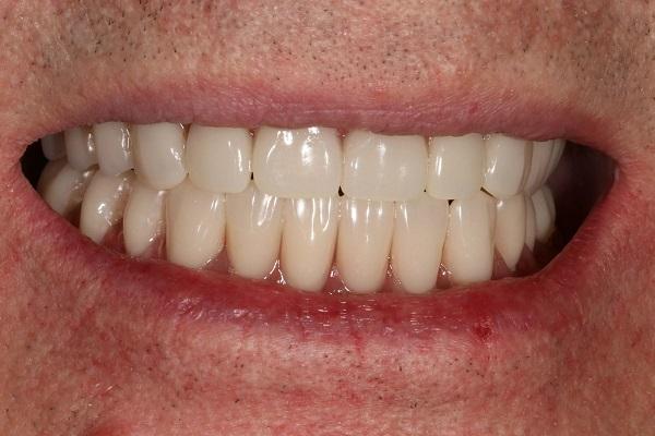 Какие последствия бывают от зуба