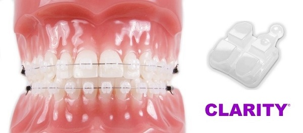 особенности размещения брекетов Кларити на зубах