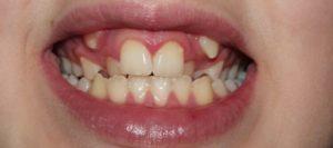 осложнения ранней потери зубов