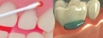 Показания к аппликационной анестезии в стоматологии