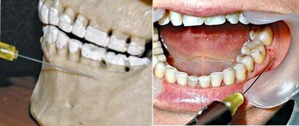 Инфильтрационная анестезия в стоматологии показания