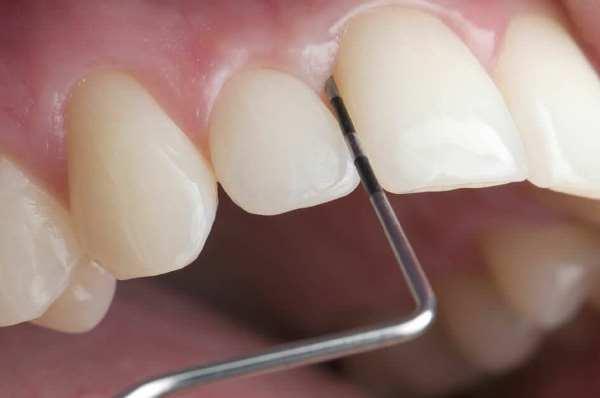 Детский стоматолог хирург что делает