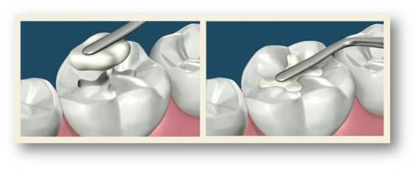 Жидкая пломба на передний зуб цена