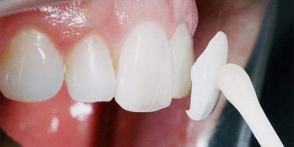 Протезирование без обточки соседних зубов технология