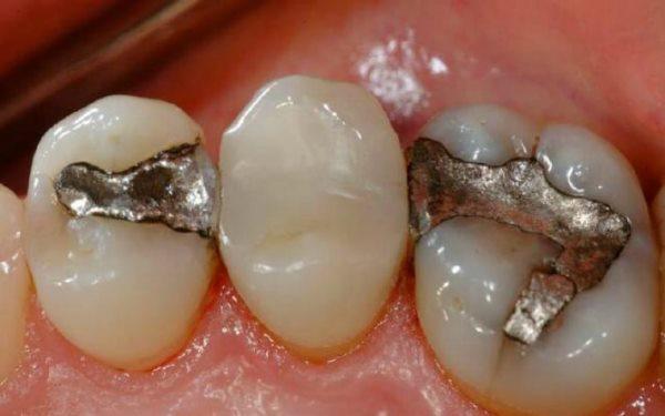 Сколько стоит поставить пломбу на передний зуб