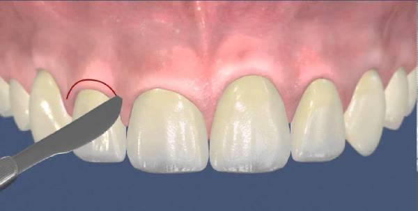 Стоматолог хирург кто это и что лечит