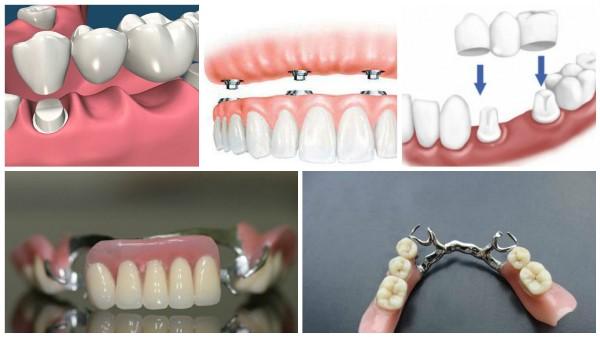 Кто такой стоматолог ортопед и что он делает