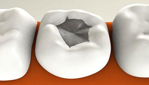 Какие бывают пломбы для зубов цены