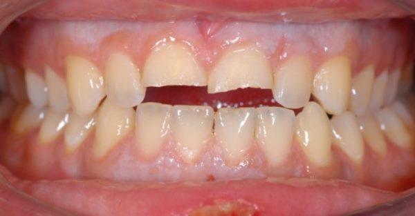 Некариозные поражения зубов у детей профилактика