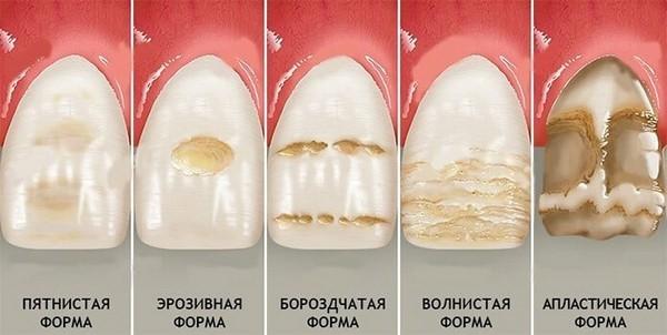 Классификация некариозных поражений зубов по патрикееву