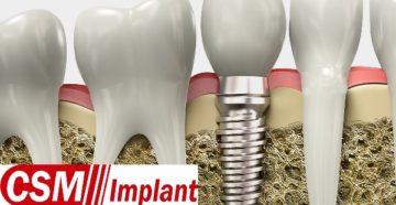 Особенности конструкции имплантов CSM