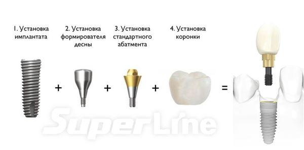 Импланты superline цены