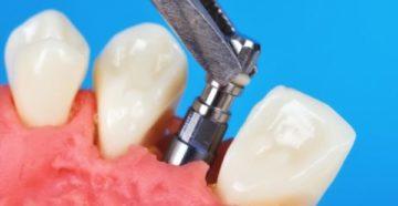 Что может привести к отторжению зубного импланта