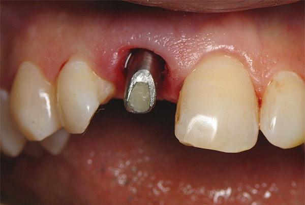 Можно ли остановить отторжение зубного импланта