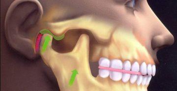 Показания к сплинт терапии в стоматологии