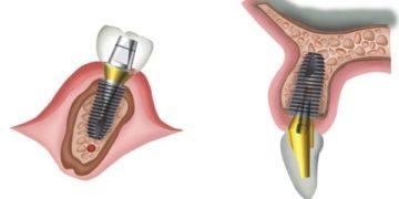 Плюсы и минусы SuperLine имплантов