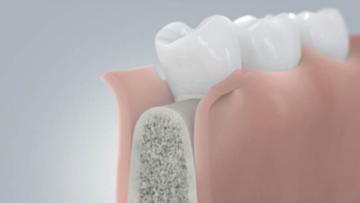 Этапы имплантации зубов без костной пластики