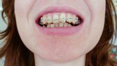 Нужно ли удалять зубы перед установкой брекетов