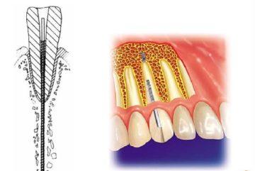 Показания к установке эндодонтически стабилизированных имплантатов