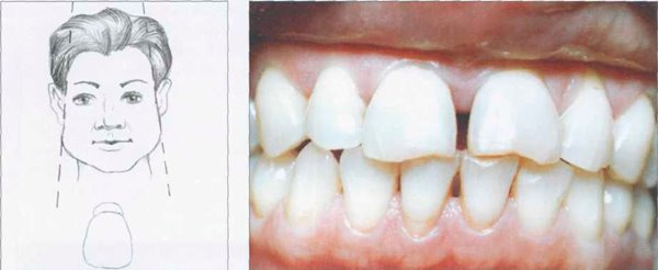 План ортодонтического лечения