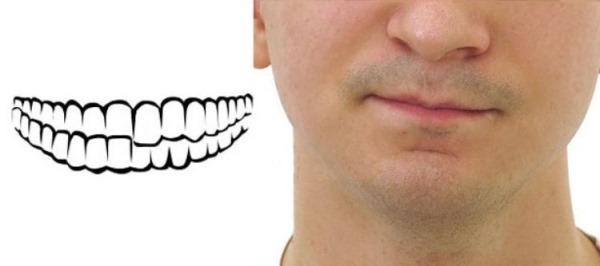 План лечения верхней и нижней челюсти