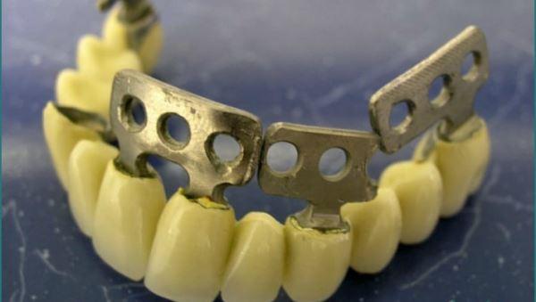 Пластиночные имплантаты цена