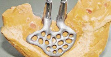 Обзор системы субпериостальных имплантатов