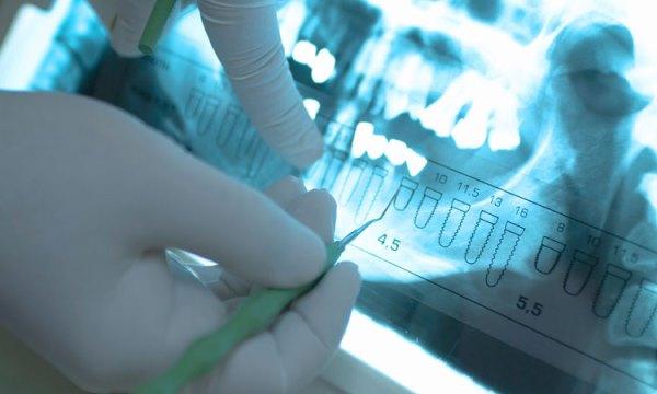 Имплантация зубов по 3d навигации